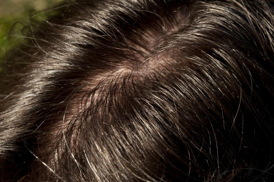 Alcohol Blood Testing: Hair strand testing combined with PEth