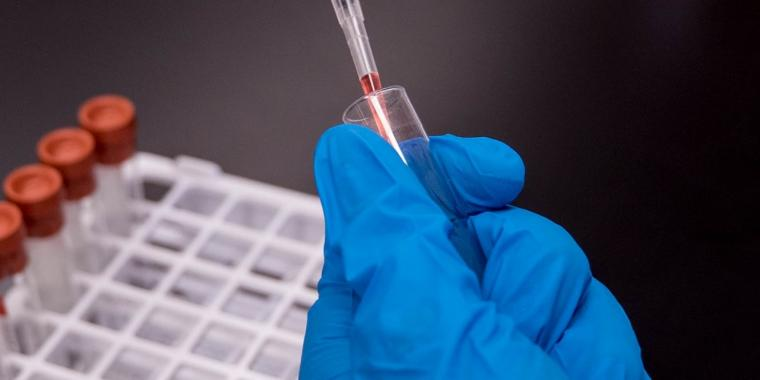 How to avoid a false positive drug test and the factors that can cause it